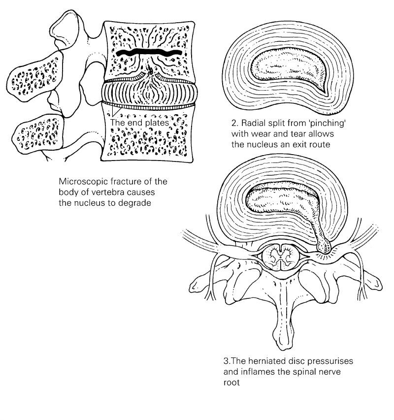 Vertebral endplate fracture causes disc degeneration and progressive breakdown