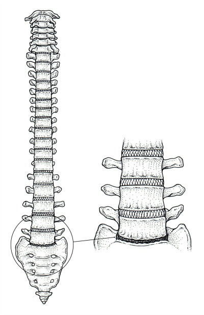 Degenerative disc disease of L5