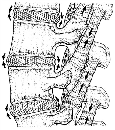 Facet joint opening is controlled by both multifidus and the semi-contractile ligamentum flavum