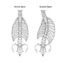 Spinal Scoliosis