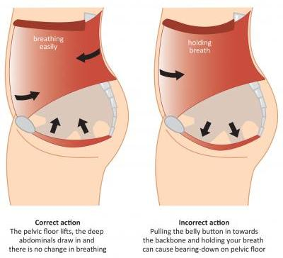 High Quality Excessively Cinching The Belly In Weakens The Pelvic Floor