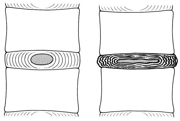 a stiff spinal segment