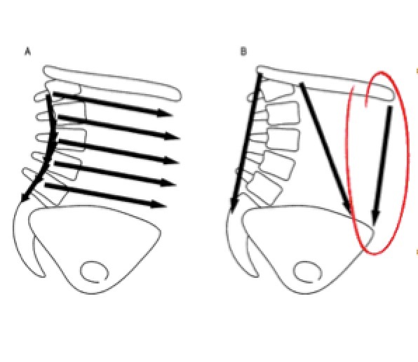 Strong abdominal muscles stop shear of the lumbar segments by reducing arching of the lower back