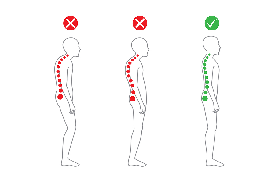 Cauda equina syndrome as well US20080045959 as well 03 Pain 20syndromes Degenerative 20spine 20diseases Functional 20neurosurgery further Diagram Of The Human Spine Showing The Places Where You Get Lordosis additionally Exercisesforposture. on spinal stenosis pain