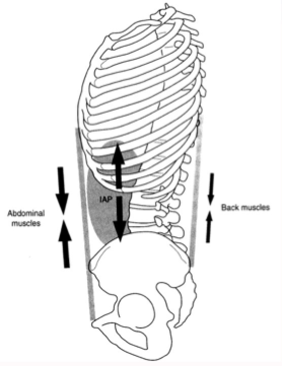 A strong abdominal contraction is not possible with over-activity of the long spinal muscles