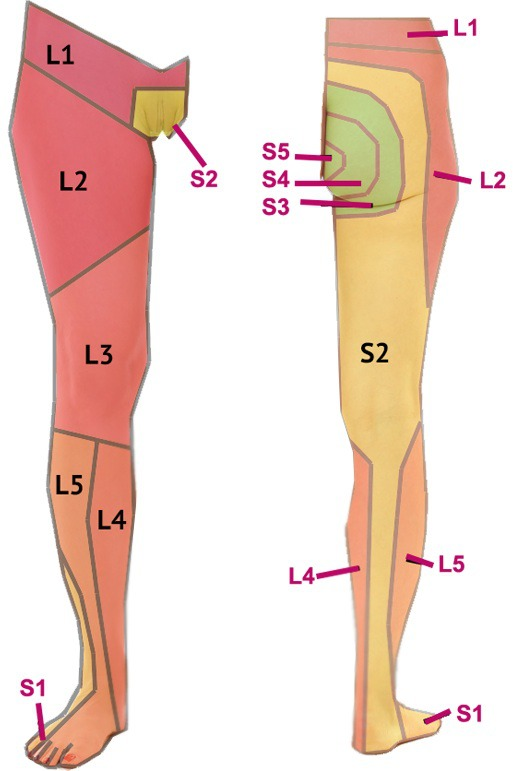 Facet Joint Arthropathy