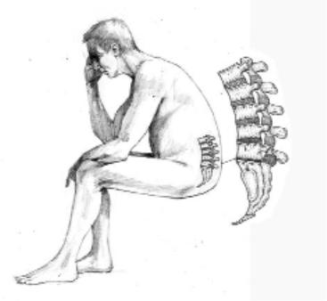 C-bend sitting drives excessive amounts of fluid from the lumbar intervertebral discs and down-regulates the biosynthetic repair processes.