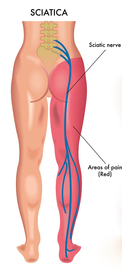 sciatica image of nerves
