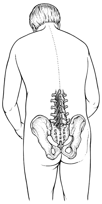 In attaching from vertebra to vertebra, multifidus works in on the spine as its fibres 'pay out' to let the spine bend.