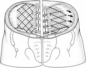 Transversus abdominis inserts into the lateral rap he